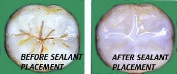 before and after dental sealant placement images